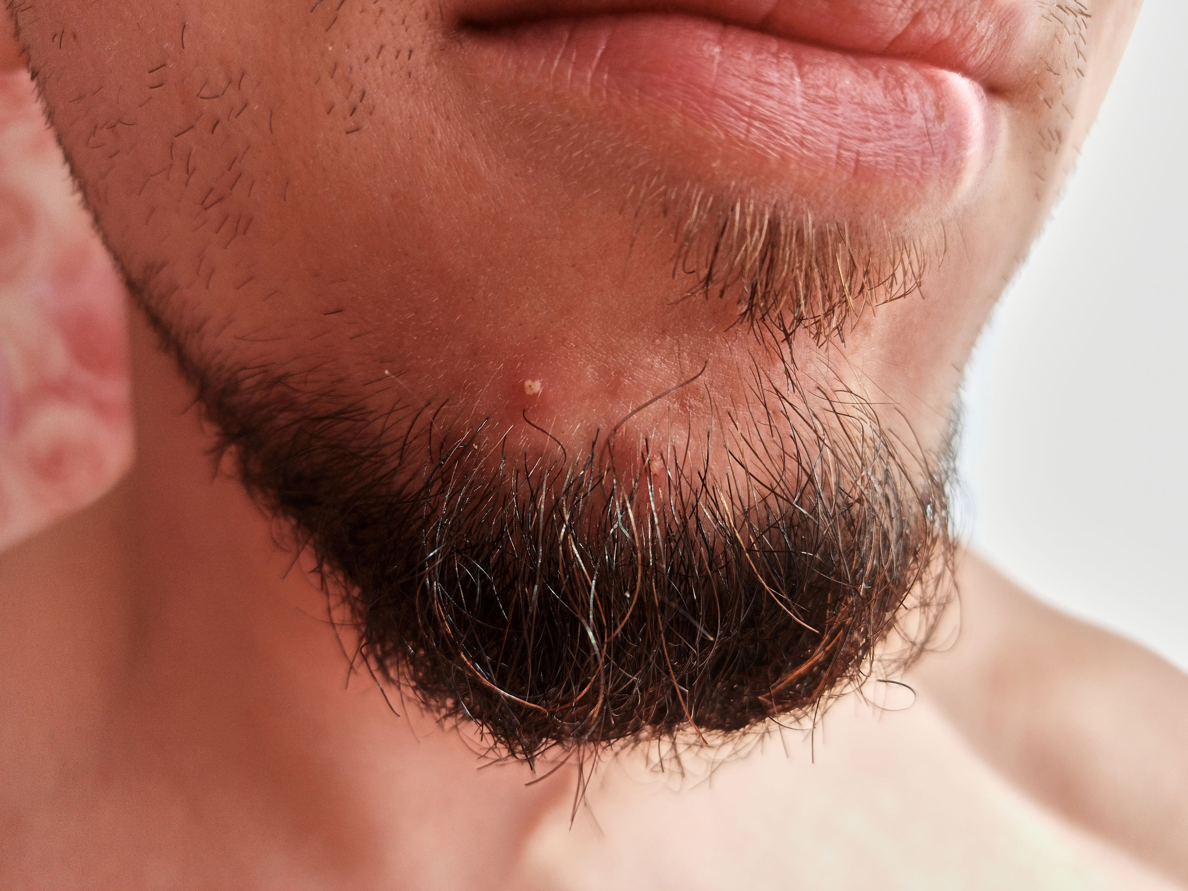 a young man with a pimple in his beard