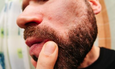Ingrown Hair in the Beard